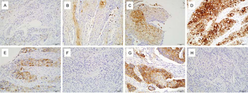 Representative pictures of IHC staining of HIF-1α, COX-2 and PD-L1 in tissue sections of ESCC.