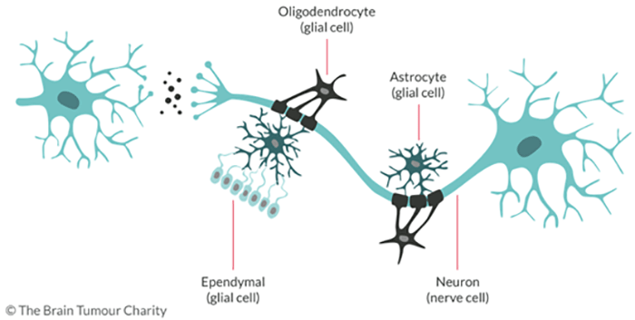 Brief Introduction of Oligodendroglioma